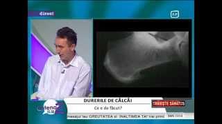 Pinten calcaneu (ciocuri calcai): Traieste sanatos, febr 2013