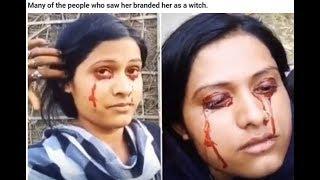 sweats blood from her eyes - breaking news - indian woman 'sweats' blood from her eyes