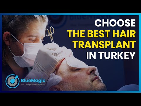 TRAPIANTO CAPELLI IN TURCHIA | DHI Hair Transplant | DHI & FUE Sapphire | BlueMagic Group Clinic