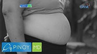 Pinoy MD: Abdominal fat, paano mawawala?