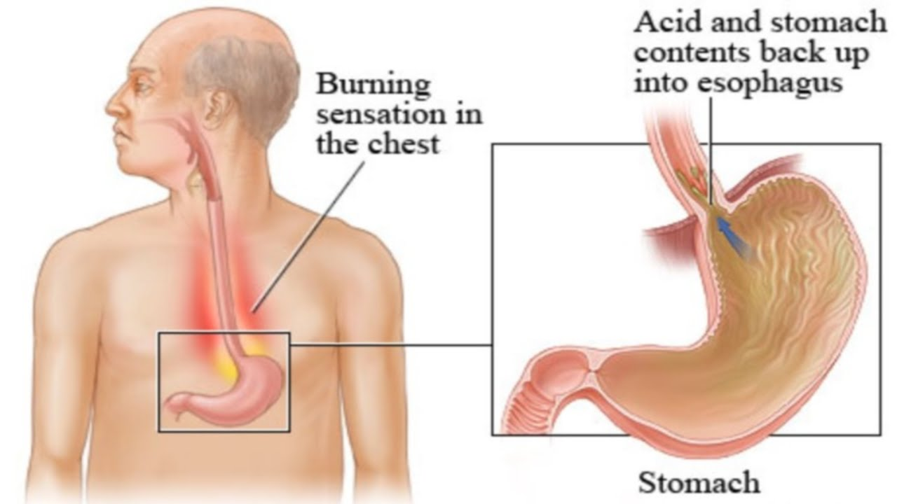 Watch on gastroesophageal reflux disease diagram