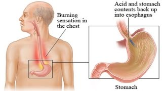 Gastroesophageal reflux disease, or gerd, is a digestive disorder that affects the lower esophageal sphincter (les), ring of muscle between esophagus...