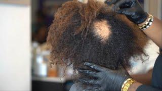 Female Pattern Baldness (The ALOPECIA EPISODE‼️)
