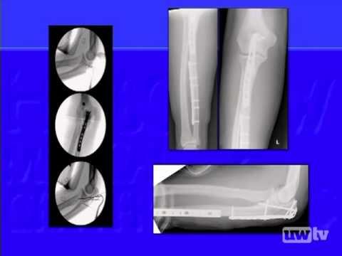 Complex Forearm Fractures