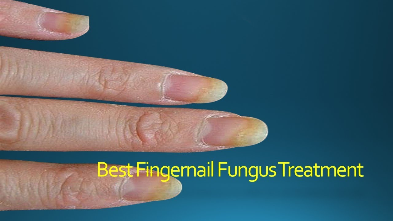 Best Fingernail Fungus Treatment - YouTube