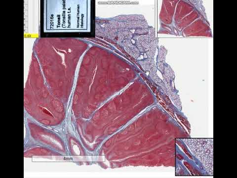 Гистология препараты-Небная миндалина