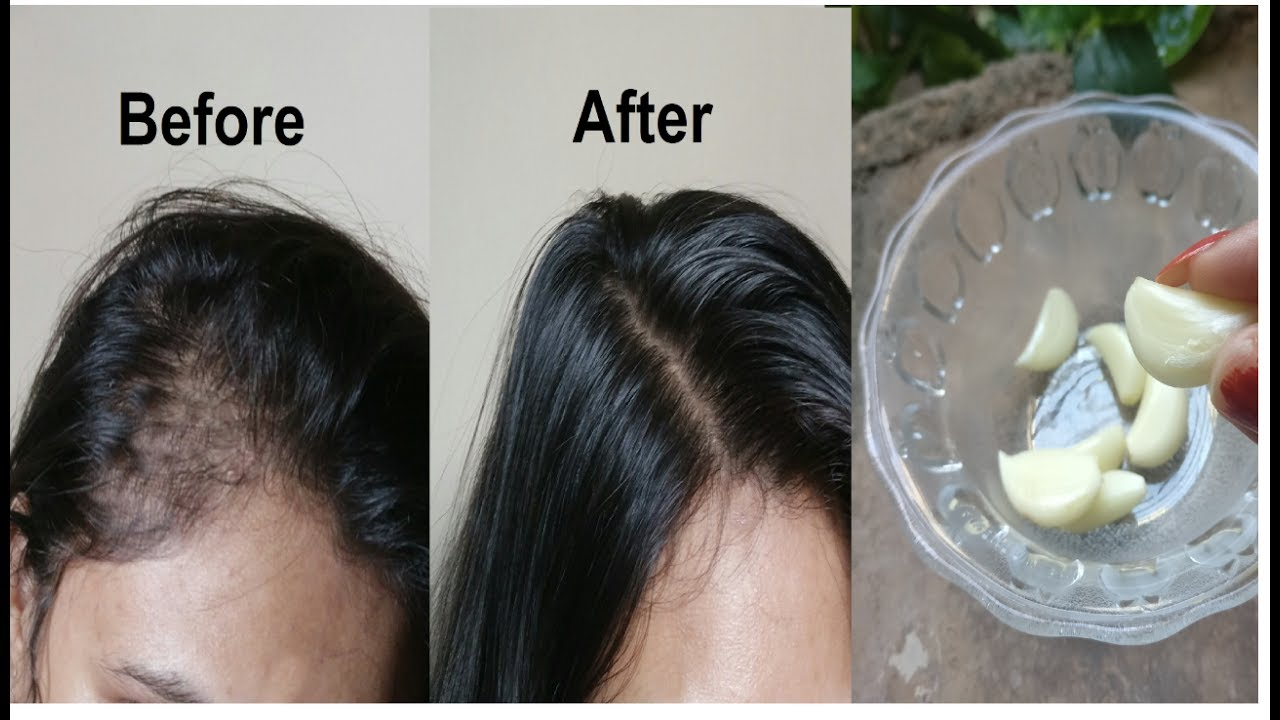 Forum on this topic: Try This Super-Simple Coconut Oil Hair Treatment, try-this-super-simple-coconut-oil-hair-treatment/