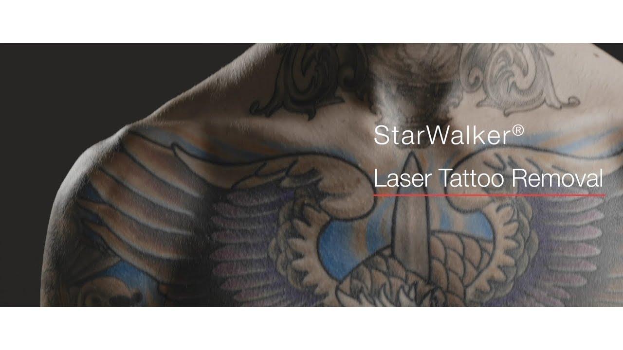 Tattoo Removal | Fotona