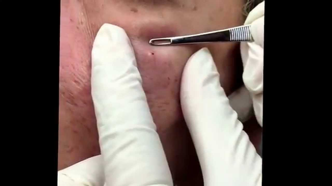 Popping Blackheads And Extracting Milia For Medical Education Nsfe