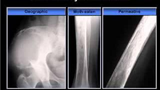 Bone Metastasis / Enfermedad ósea metastasica