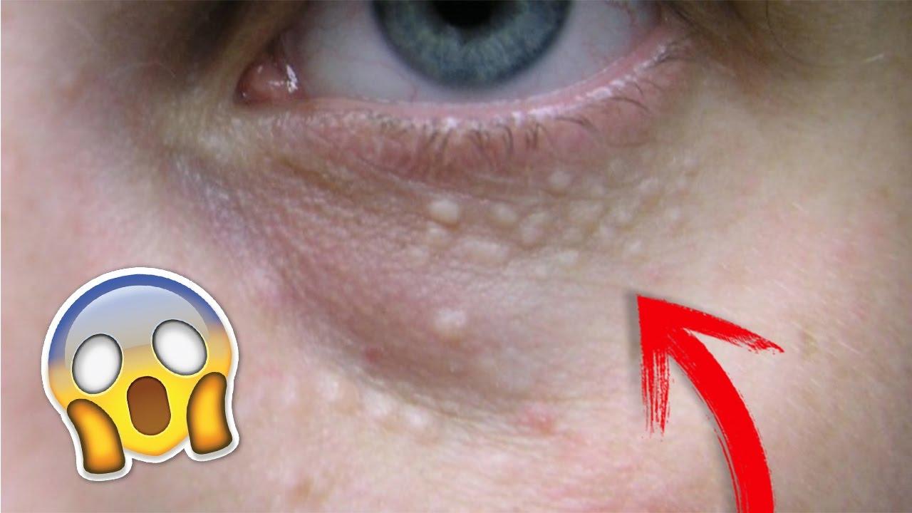 Una verruga en el ojo