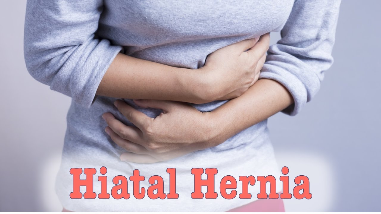 Hiatal Hernia - Cause and Solution