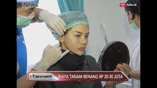 Nikita Mirzani Tanam Benang di Wajah, Berapa Biaya yang Dihabiskan? - i-Tainment 22/08