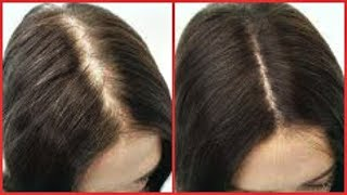 HOW TO REGROW HAIR ON BALD SPOT, EDGES, THINNING HAIR, FAST HAIR GROWTH |Khichi Beauty