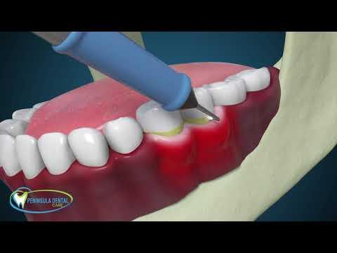 Dentist in Rosebud, Mornington Peninsula | Dental Clinic Rosebud