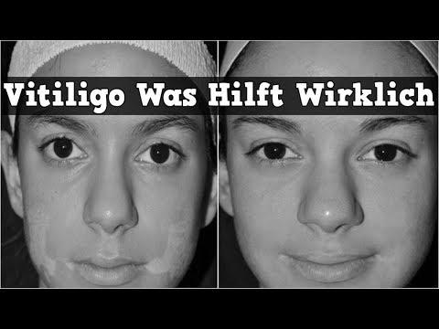 vitiligo was hilft wirklich vitiligo komplett geheilt. Black Bedroom Furniture Sets. Home Design Ideas