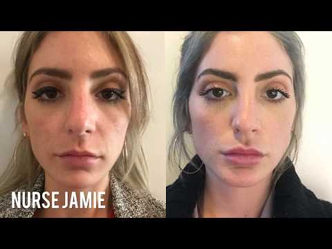 Before and After - Micro Needling - Nurse Jamie
