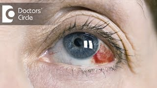 Causes of red clots in eyes - Dr. Mala Suresh