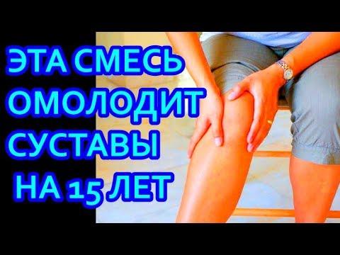Суставы болят лечение колени мази лекарства