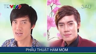 Gương mặt mới ca sĩ Đặng Trí Trung sau ca đại phẫu thuật hàm móm
