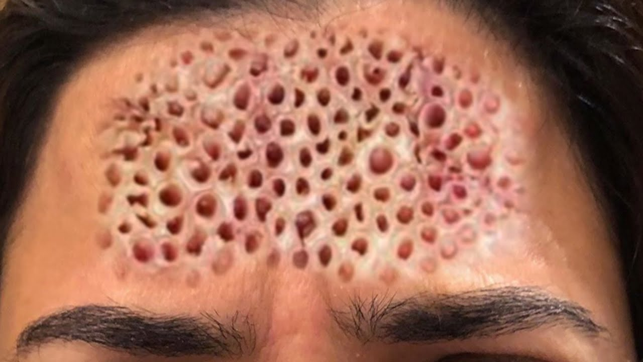 Top Trypophobia SFX of All Time!  Best Trypophobia Makeup & Special Effects