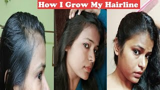 Hairline कैसे Regrow करें? Fast Hair Growth Oil | How I Grow Hair Line Naturally  | Shinny Roops