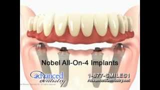 Dental Implant Supported Dentures in One Day!