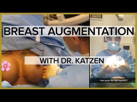 Breast Augmentation with Silicone Implants - Transformation Tuesday with Dr. Katzen