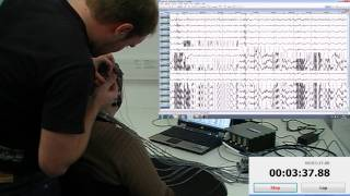 EEG speed mounting: 64 channels in 5 minutes and 54 seconds including quality check thumbnail