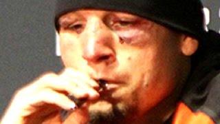 NATE DIAZ UFC 202 DRUG TEST CLEAN!!! USADA INVESTIGATION VAPE WEED PEN CBD OIL POSSIBLE SANCTION!