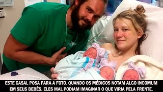 Mãe e pai posam para a foto. Mas os médicos notam algo incomum nos rostos de seus bebês thumbnail