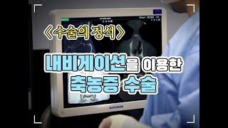 [수술의 정석] 내비게이션을 이용한 축농증 수술-대구 …