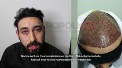 Erfahrung mit Haartransplantationen in Großbritannien