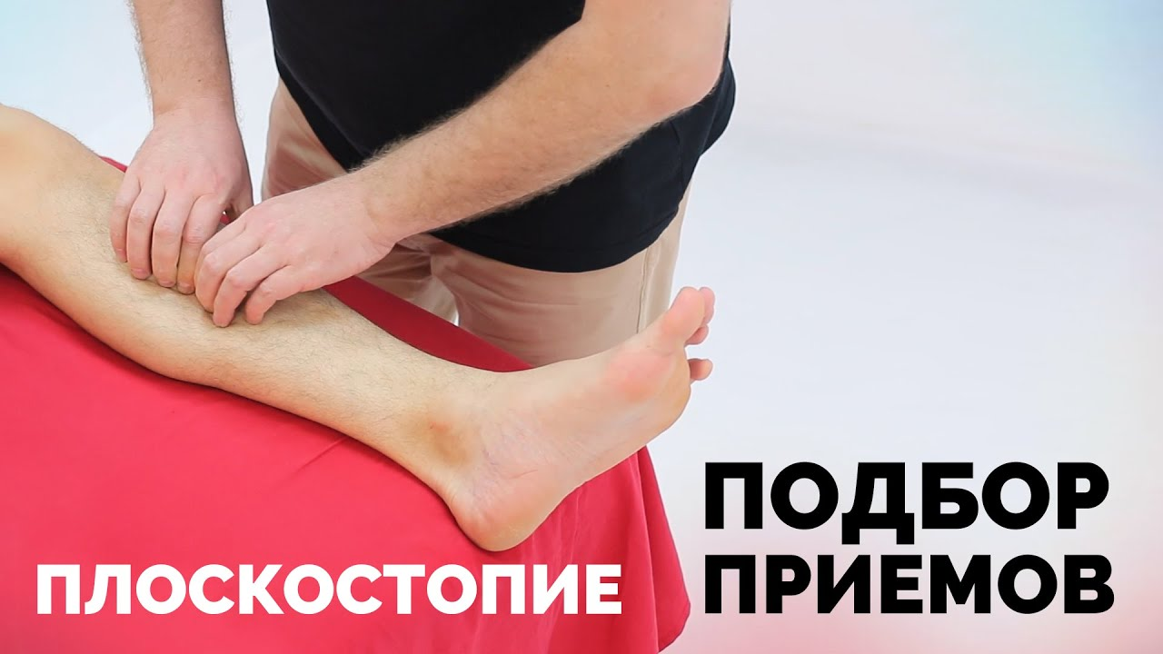 Причины плоскостопия часть 2. Подбор приемов для восстановления правильной формы стопы
