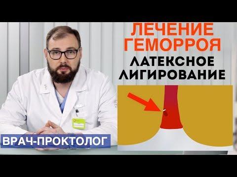 Лечение геморроя - латексное лигирование. Лечение геморроя за один день | колопротколог | колопроктолог | колоноскопия | проктология | проктолог | геморроя | геморрой | лечение | хирург | за