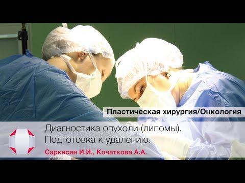 Удаление опухоли липомы. Хирург Саркисян И.И., хирург Кочаткова А.А.