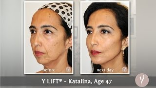 Y LIFT ® 2014 - Katalina | Instant, Non Surgical Facelift