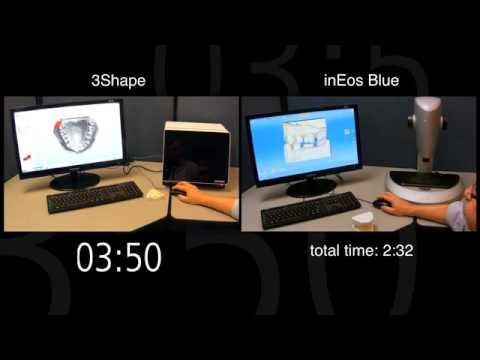 inEos Blue vs 3Shape