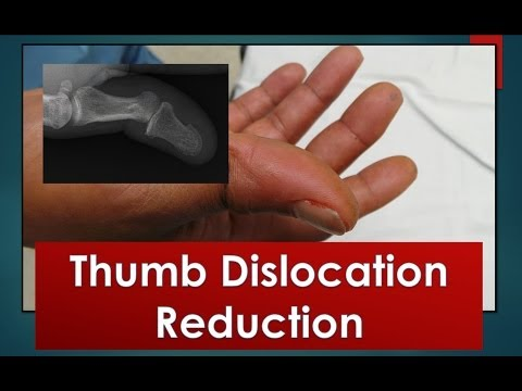 Thumb Dislocation Reduction