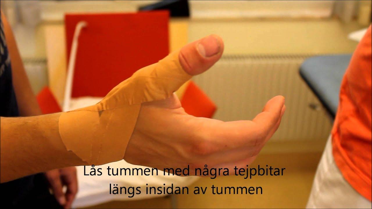 artros i tummen symtom