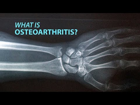 What Are You Aware About Osteo arthritis