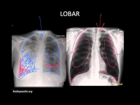 Pneumonia: Imaging