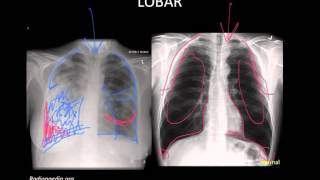 Pneumonia: Imaging
