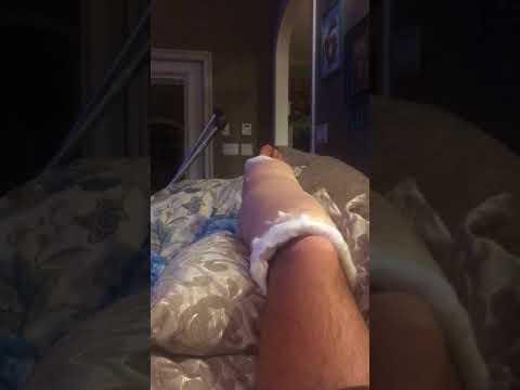 Achilles / heel spur surgery - Robert Jones Dressing - Day After