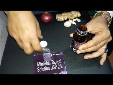 Mintop Solution in Hindi Review