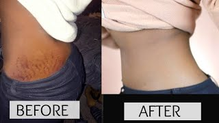 In just 1 Minute, STRETCH MARK Will disappear Permanently, Remedy for STRETCH MARK
