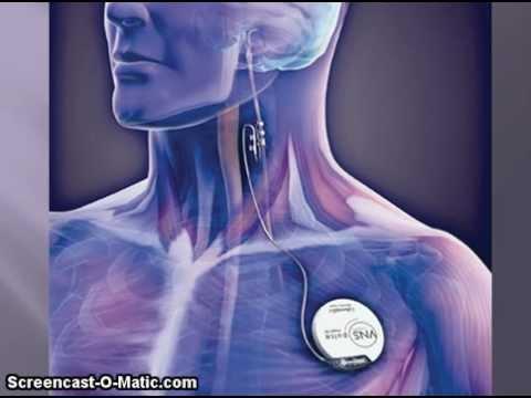 Vagal Nerve Stimulator Doovi