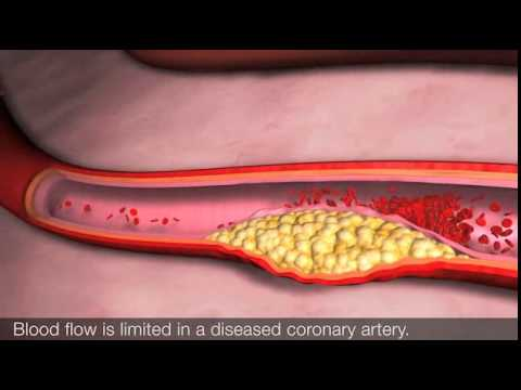 Angina and coronary heart disease