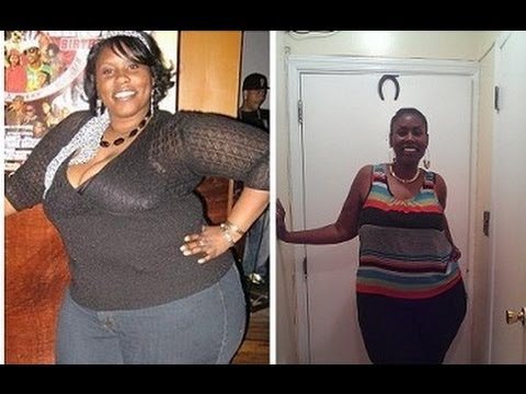 How Did I Lose Weight Exercise Diet Weight Loss Surgery Lapband