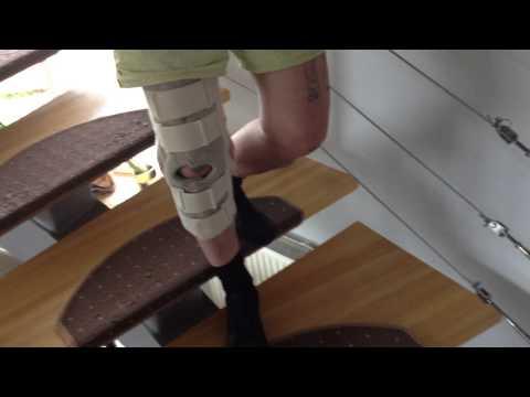 Реабилитация после инсульта, центр реабилитации после